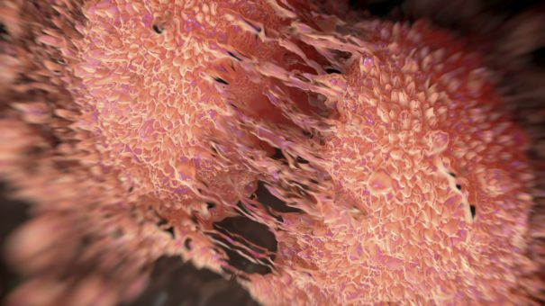 Clovis files key ovarian cancer drug in US