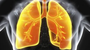 Owlstone's breath-based lung cancer diagnostic could save 10,000 lives