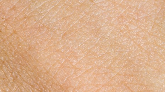"FDA sets April verdict for Pfizer's ""underestimated"" atopic dermatitis drug"