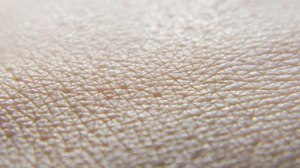 Sanofi's eczema drug gets EU approval to treat adolescents