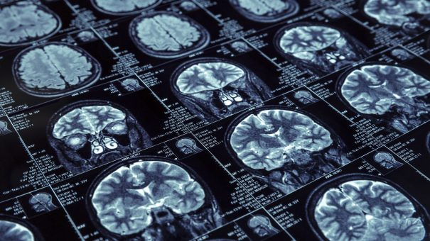 Biogen drug shows potential in Alzheimer's