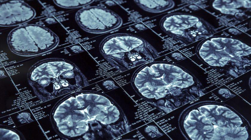 IBM Watson to bring AI to brain bleed detection