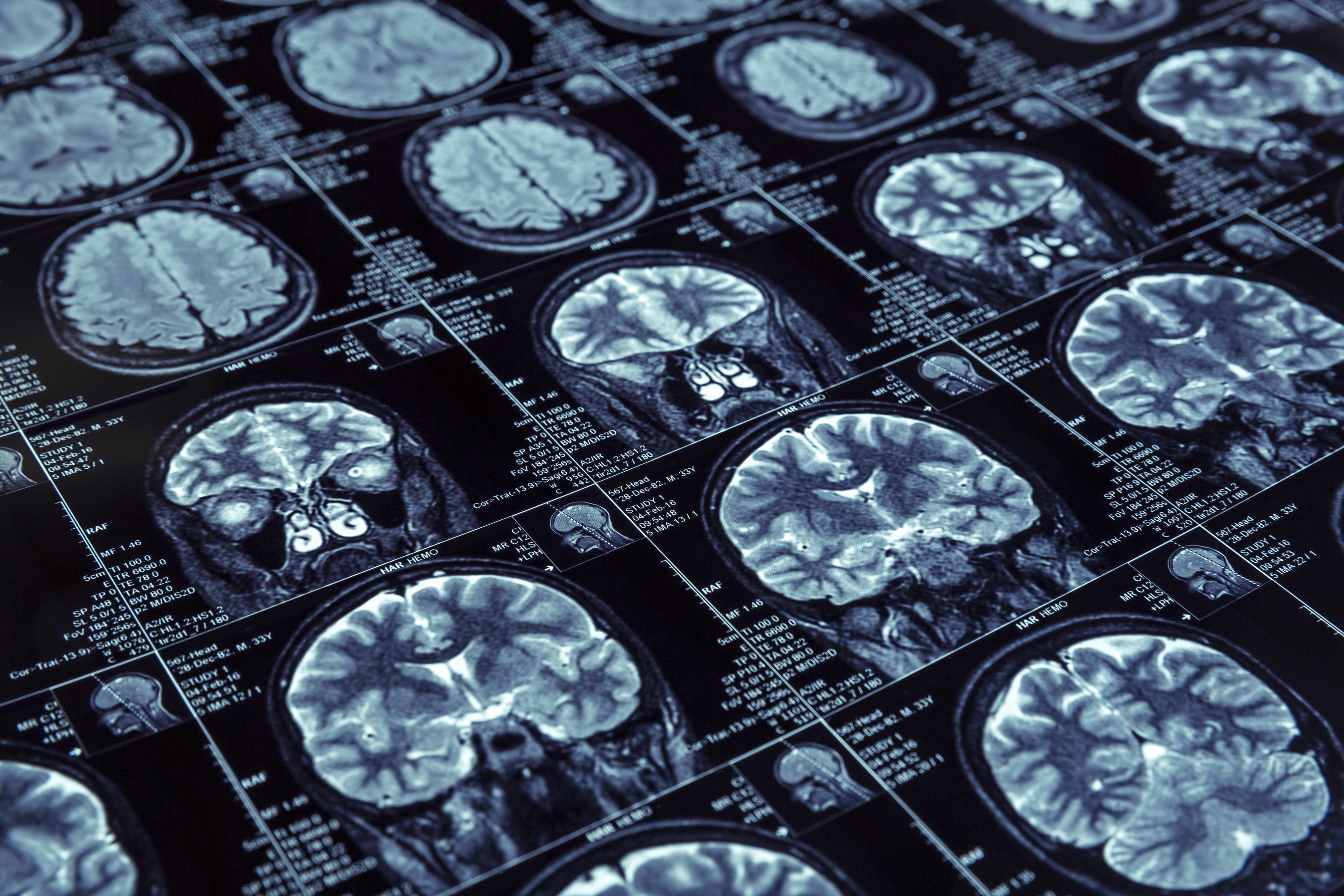 BMS' Opdivo misses target in aggressive brain cancer trial