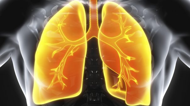 AI system beats radiologists at predicting lung cancer risk