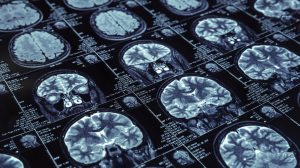 AbbVie signs $225m 'immunoneurology' deal to tackle Alzheimer's