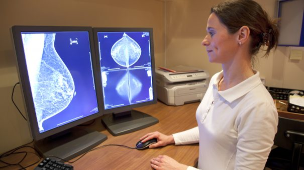 "Women urged to look for ""non-lump"" breast cancer symptoms"