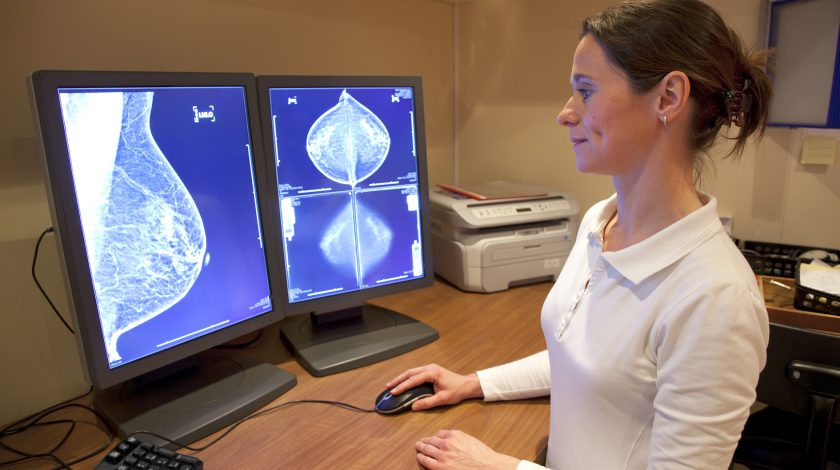 Image result for Radiologist Have a New Tool to Detect Breast Cancer