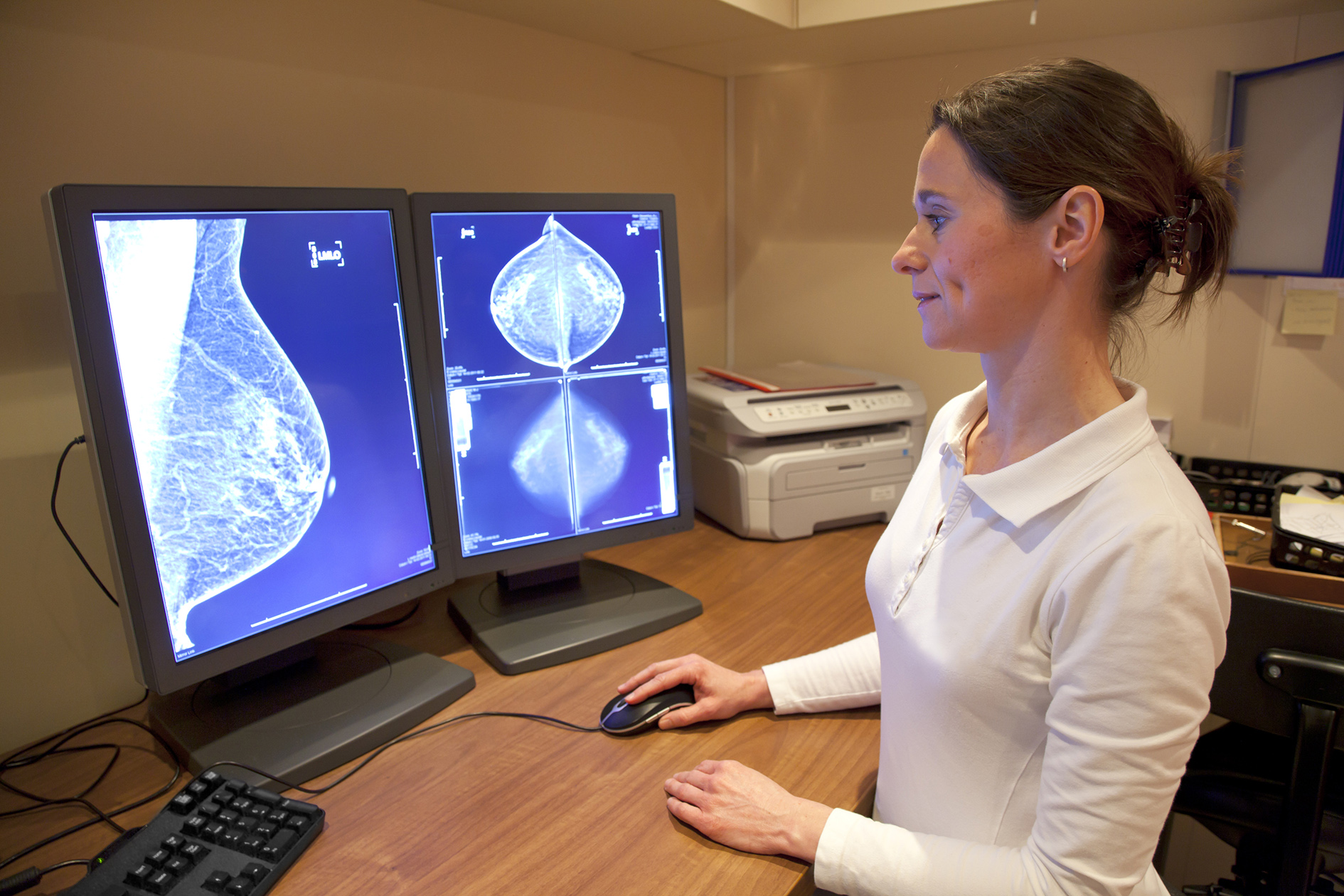 MacroGenics looks to future with breast cancer drug margetuximab