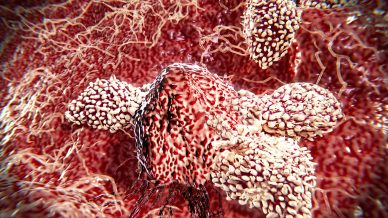 AZ looks for advantage over Merck in lung cancer trial