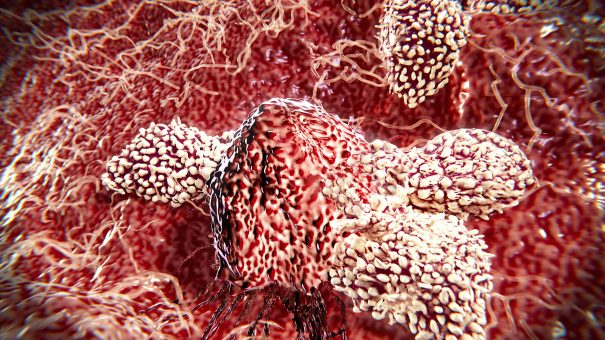 Chinese CAR-T results offer hope of myeloma cure