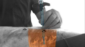 Augmented reality software to help spinal surgeons