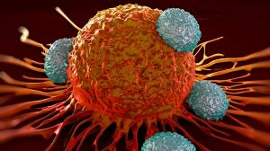 Calibr and AbbVie's switchable cancer CAR-T begins clinical trials