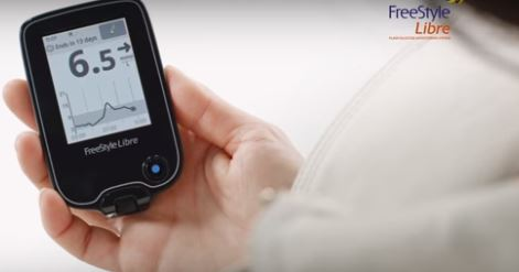 Medicare to fund Abbott's needle-free diabetes monitor