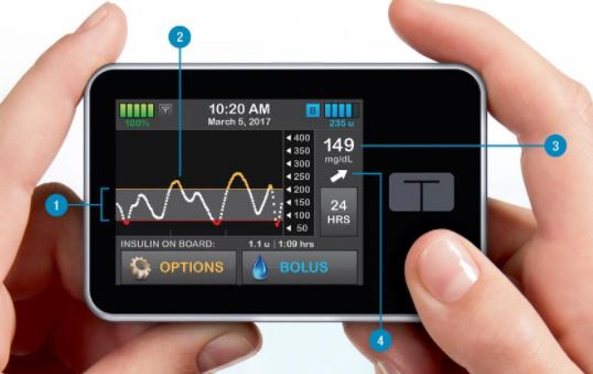 Tandem's insulin pump can predict and prevent hypo's