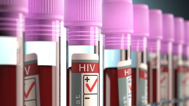 Positive results announced for ViiV Healthcare's two-drug HIV pill