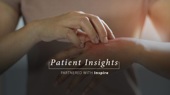 Patient Insights: Severe psoriasis & eczema
