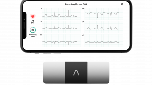 AliveCor launches six-lead ECG smartphone device in UK