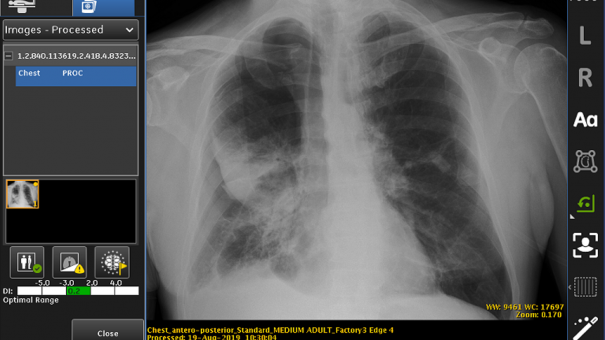 FDA approves GE's AI-based collapsed lung detection system