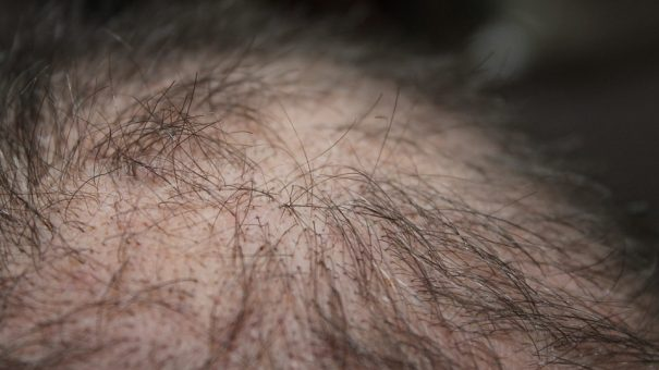 Allergan bolsters aesthetics pipeline with Exicure hair loss deal