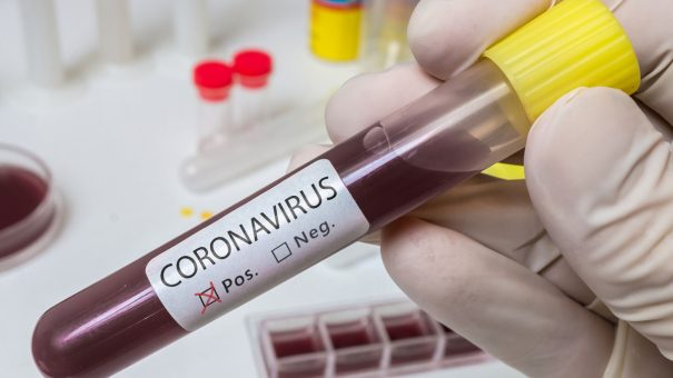 hVIVO offers coronavirus antibody testing to UK employers