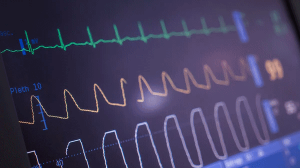 AI study will help select AFib patients for shock treatment