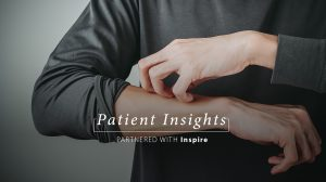 Patient Insights: Eczema