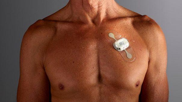 iRhythm digital heart monitoring service backed by NICE