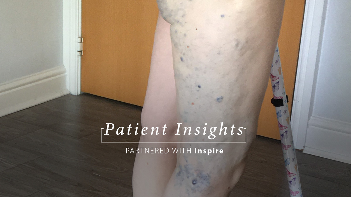 Growing up different and not knowing why: My experience of rare vascular disorder KTS