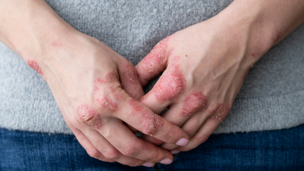 The key to psoriasis innovation? Dispelling the shadow of the JAK inhibitor