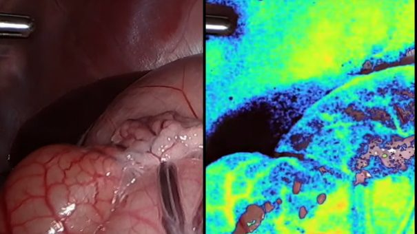 Digital surgery firm Activ raises $45m for AR software