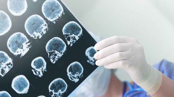 Early diagnosis key to future Alzheimer's treatments